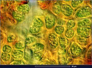 Botryococcus_63
